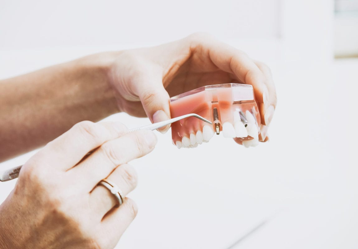 Why You Should Consider Adding Dental Health Coverage